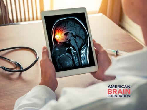 Understanding Migraine